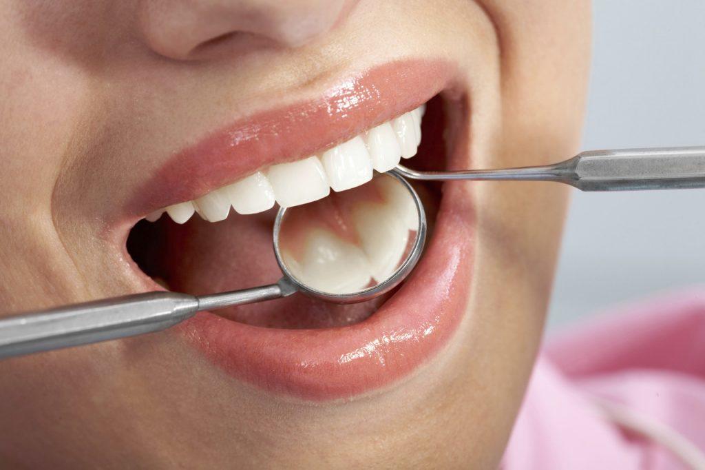 Jak się przygotować do wszczepienia implantów zębów?
